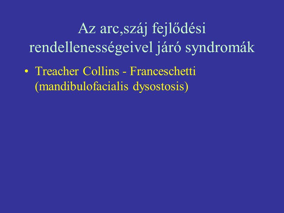 Az arc,száj fejlődési rendellenességeivel járó syndromák