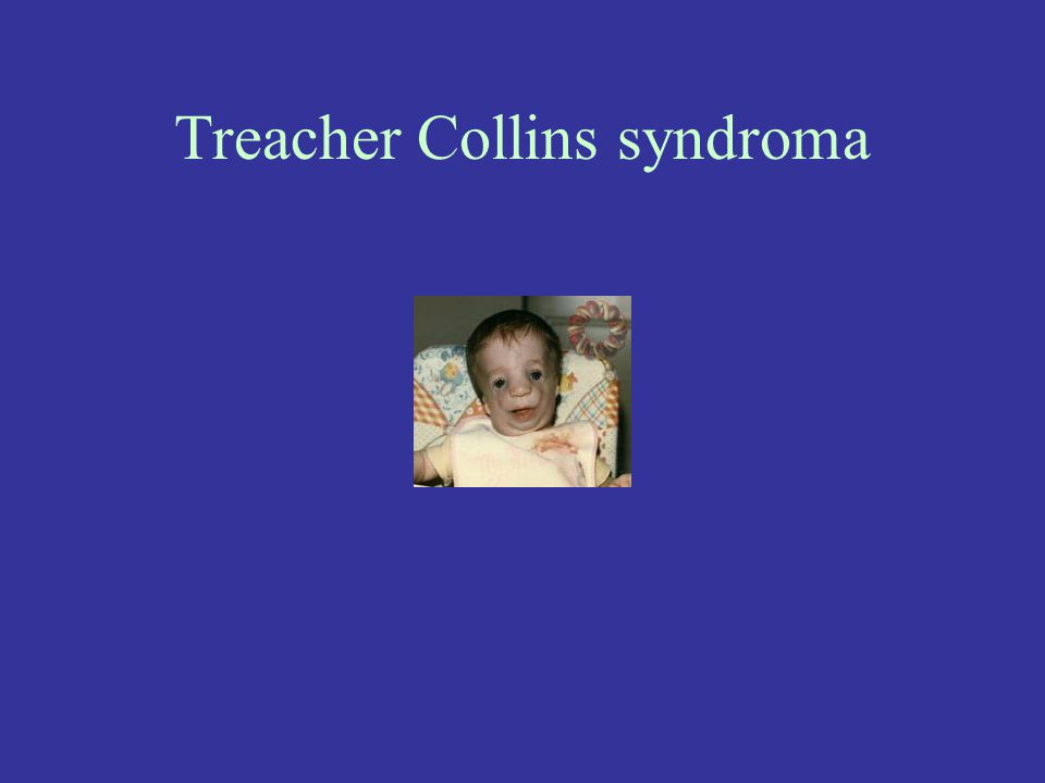 Treacher Collins syndroma