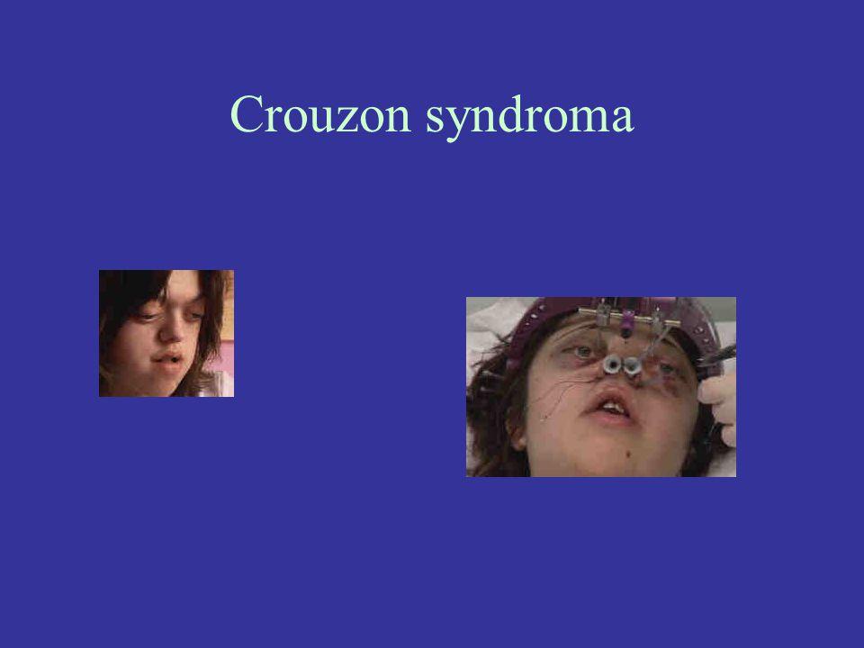Crouzon syndroma