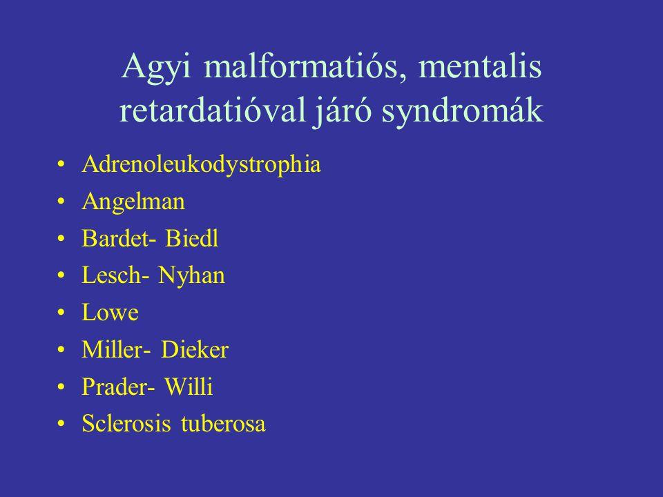 Agyi malformatiós, mentalis retardatióval járó syndromák