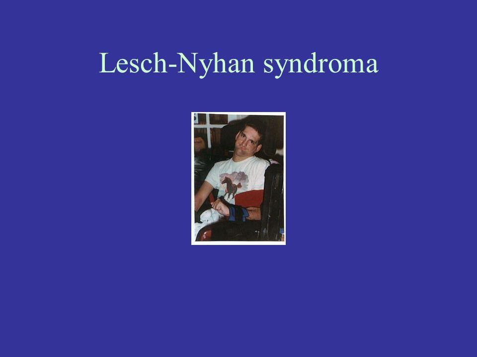 Lesch-Nyhan syndroma