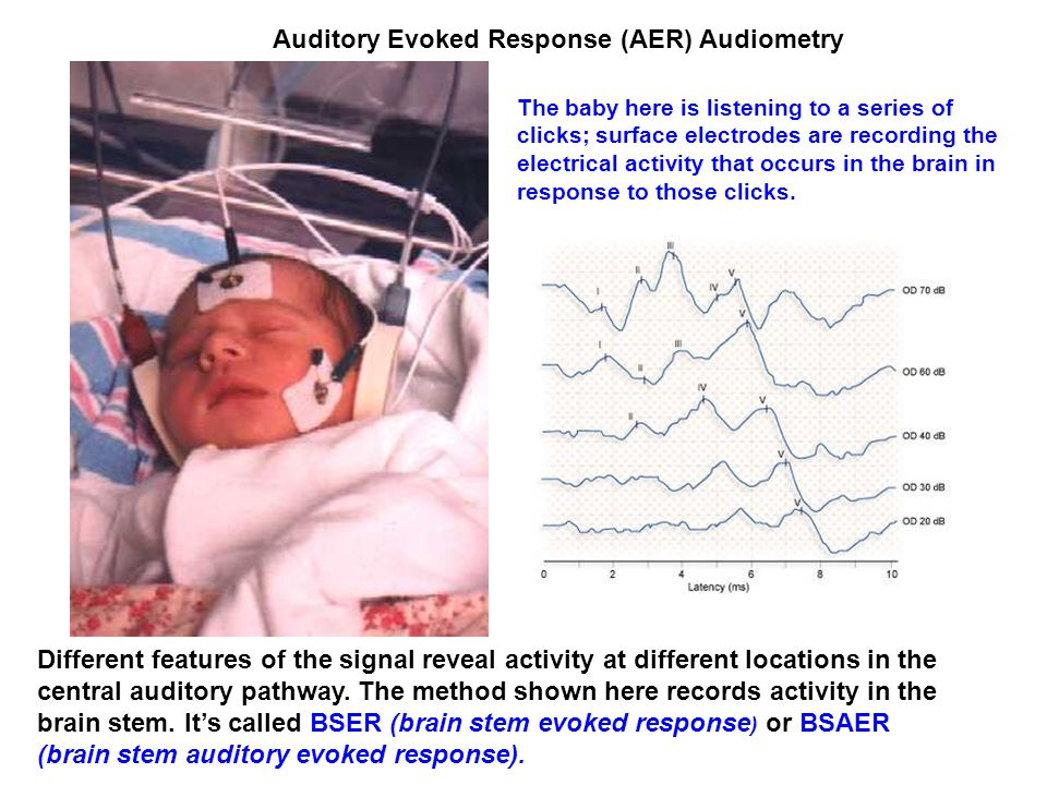 Auditory Evoked Response (AER) Audiometry