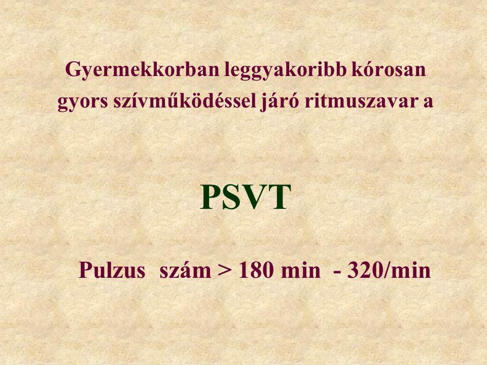 PSVT Pulzus szám > 180 min - 320/min