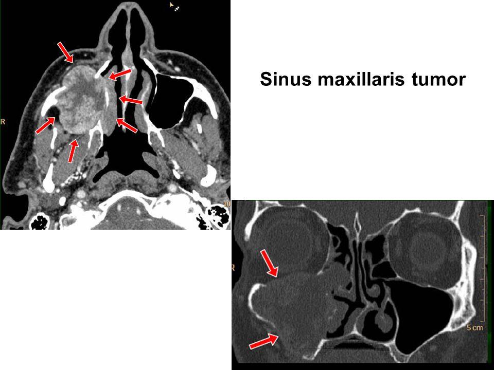 Sinus maxillaris tumor