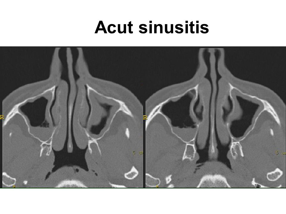 Acut sinusitis