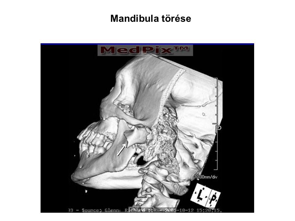 Mandibula törése