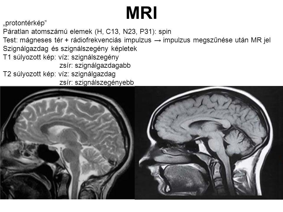 """MRI """"protontérkép Páratlan atomszámú elemek (H, C13, N23, P31): spin"""