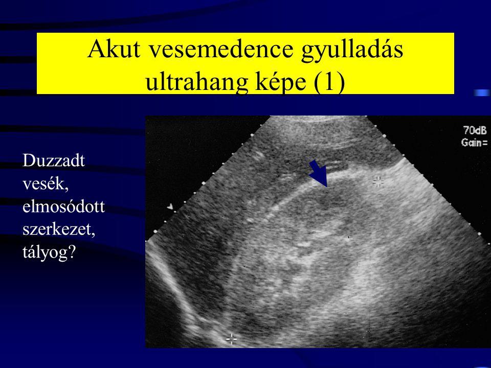 Akut vesemedence gyulladás ultrahang képe (1)