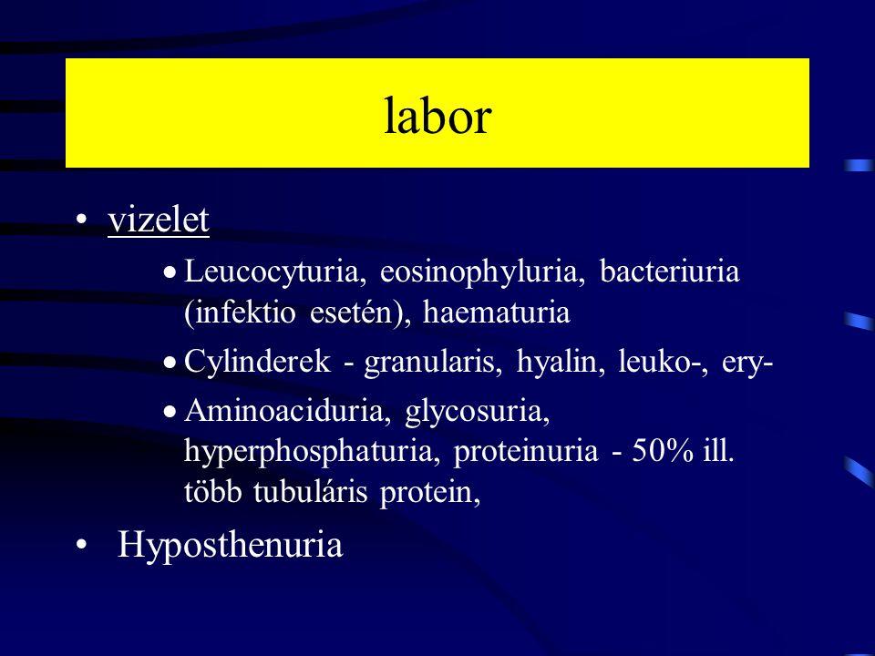 labor vizelet Hyposthenuria
