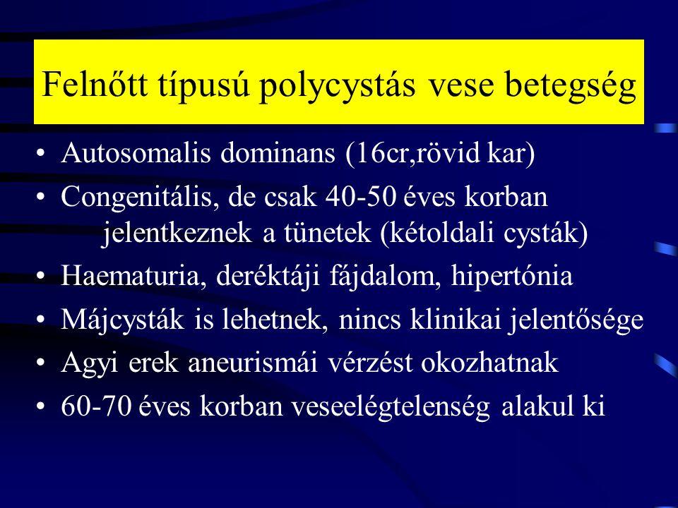 Felnőtt típusú polycystás vese betegség