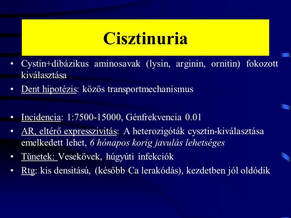 Cisztinuria Cystin+dibázikus aminosavak (lysin, arginin, ornitin) fokozott kiválasztása. Dent hipotézis: közös transportmechanismus.