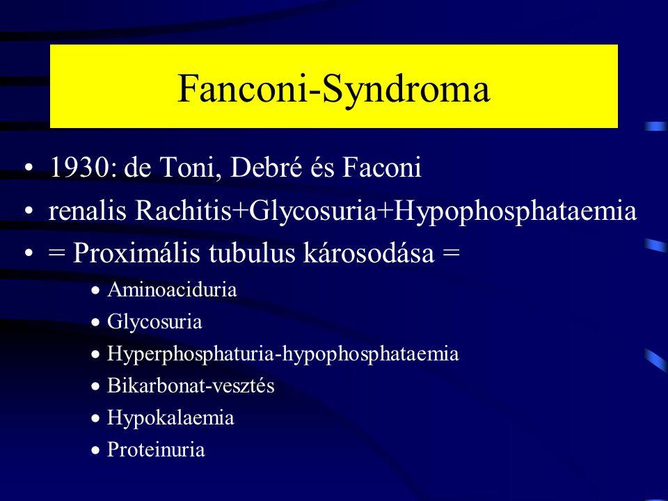 Fanconi-Syndroma 1930: de Toni, Debré és Faconi