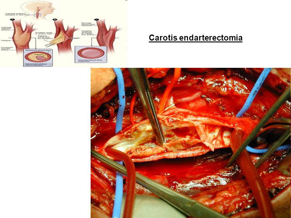 Carotis endarterectomia