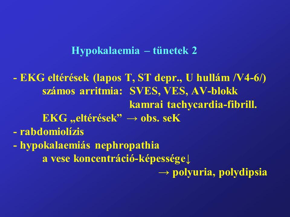 Hypokalaemia – tünetek 2 - EKG eltérések (lapos T, ST depr