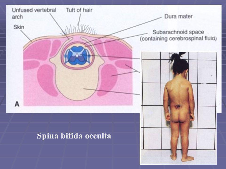 Spina bifida occulta