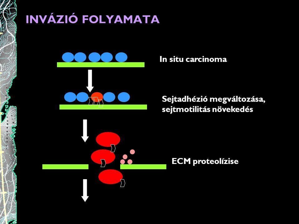 INVÁZIÓ FOLYAMATA In situ carcinoma Sejtadhézió megváltozása,