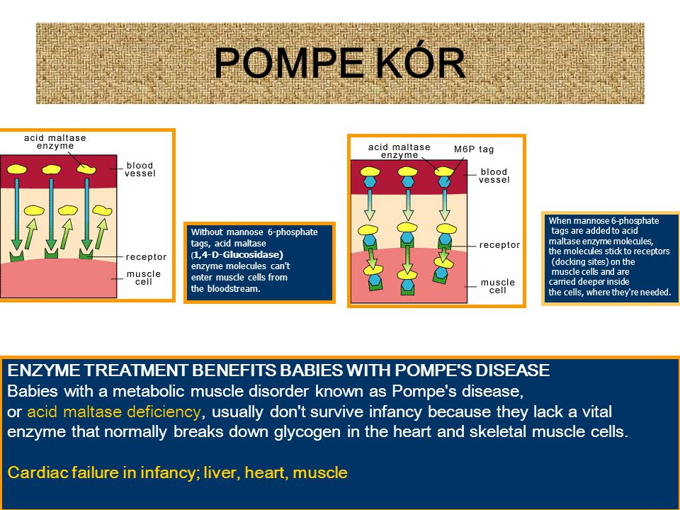 POMPE KÓR ENZYME TREATMENT BENEFITS BABIES WITH POMPE S DISEASE