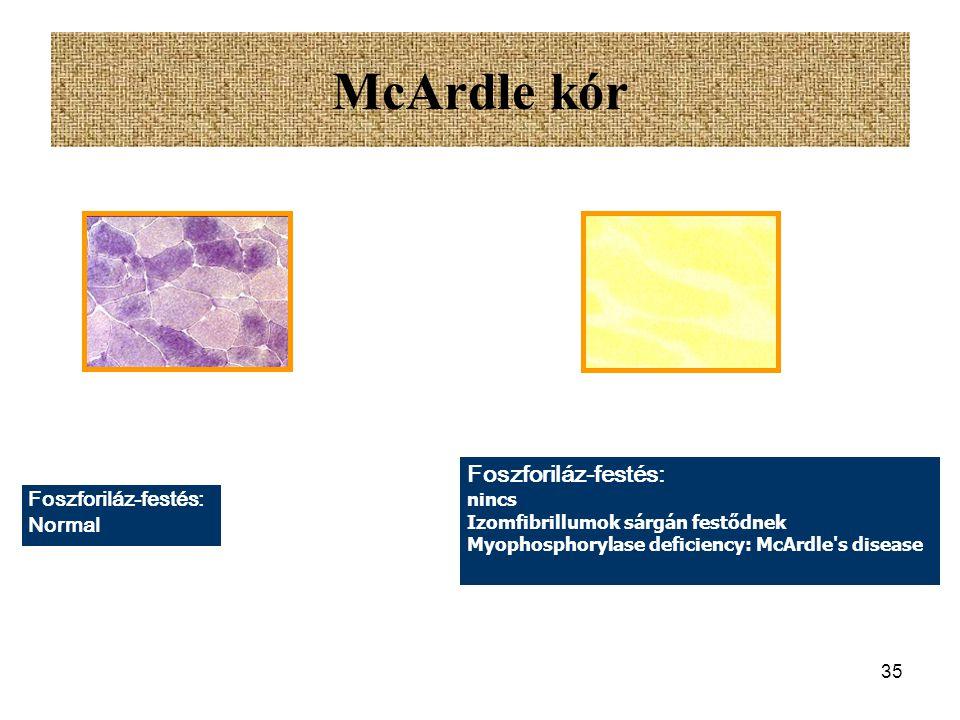 McArdle kór Foszforiláz-festés: Foszforiláz-festés: Normal nincs