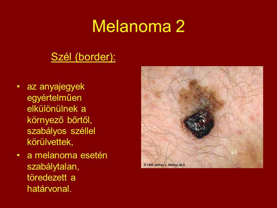 Melanoma 2 Szél (border):