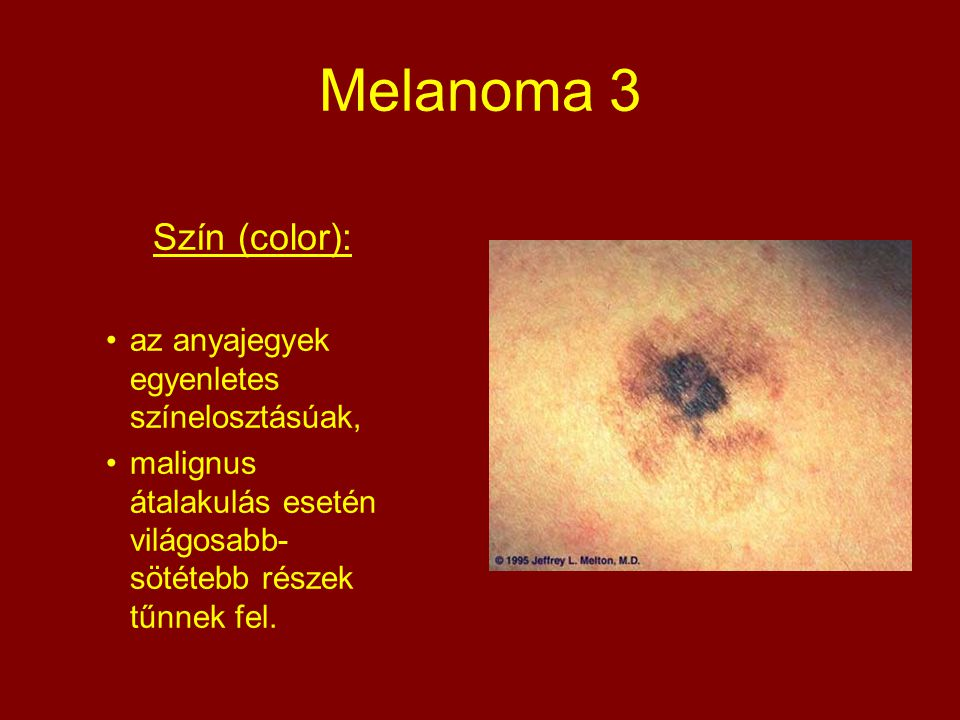 Melanoma 3 Szín (color): az anyajegyek egyenletes színelosztásúak,