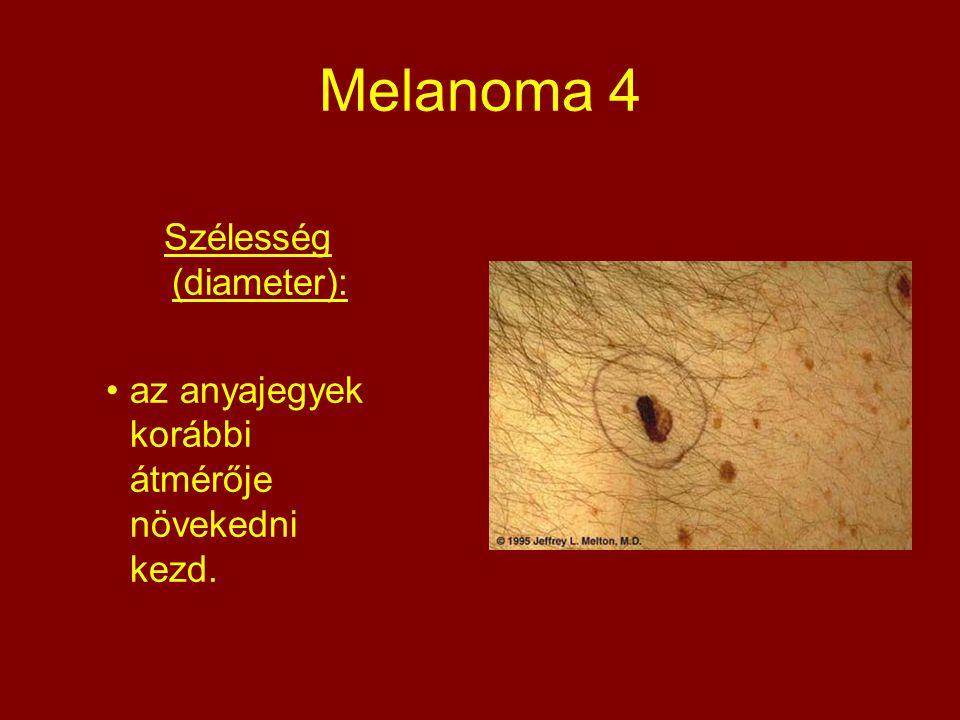 Szélesség (diameter):