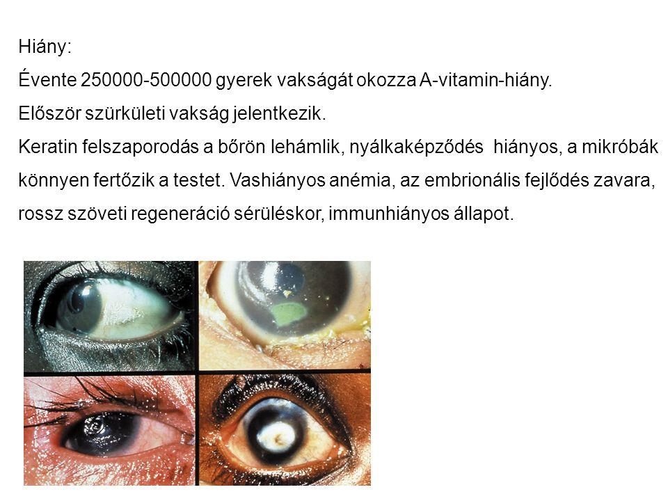Hiány: Évente 250000-500000 gyerek vakságát okozza A-vitamin-hiány. Először szürkületi vakság jelentkezik.