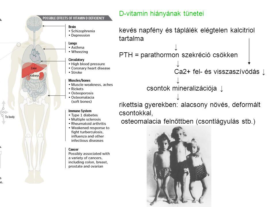 D-vitamin hiányának tünetei