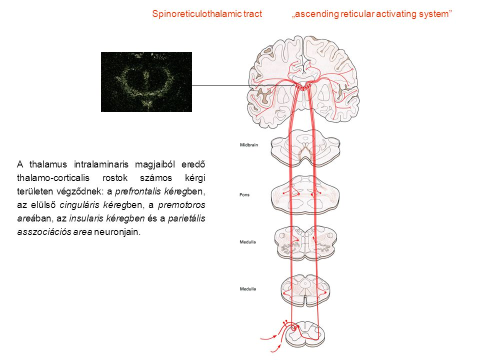 "Spinoreticulothalamic tract ""ascending reticular activating system"
