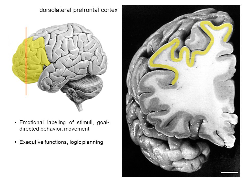 dorsolateral prefrontal cortex