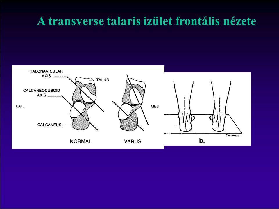 A transverse talaris izület frontális nézete