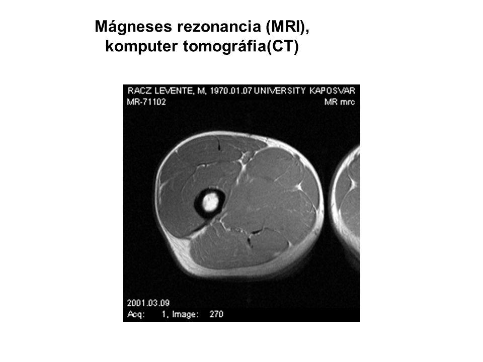 Mágneses rezonancia (MRI), komputer tomográfia(CT)