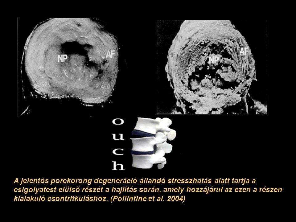 A jelentős porckorong degeneráció állandó stresszhatás alatt tartja a csigolyatest elülső részét a hajlítás során, amely hozzájárul az ezen a részen kialakuló csontritkuláshoz.