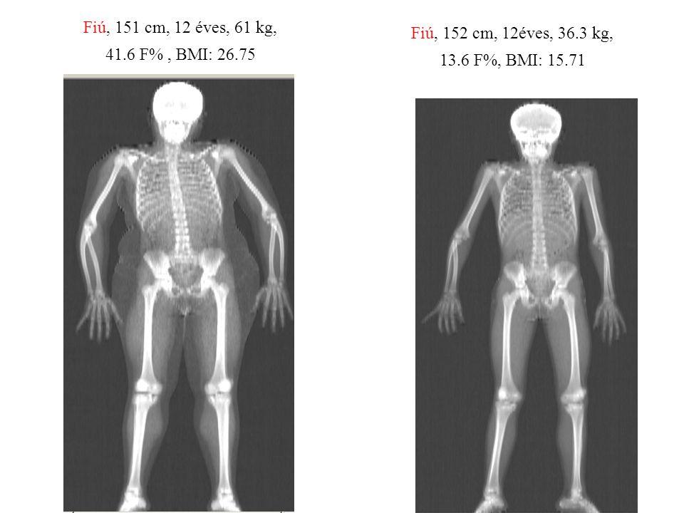 Fiú, 151 cm, 12 éves, 61 kg, 41.6 F% , BMI: 26.75 Fiú, 152 cm, 12éves, 36.3 kg, 13.6 F%, BMI: 15.71