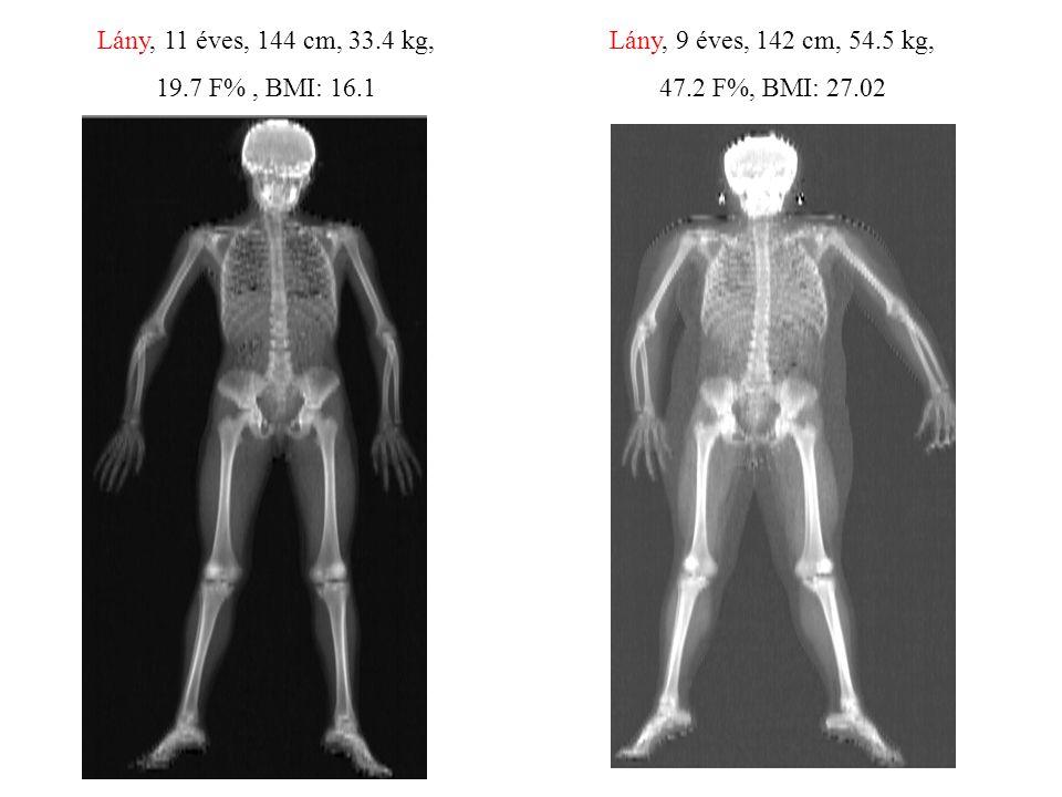 Lány, 11 éves, 144 cm, 33.4 kg, 19.7 F% , BMI: 16.1.