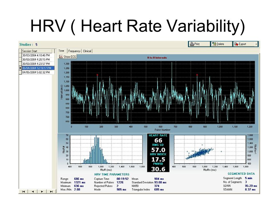 HRV ( Heart Rate Variability)