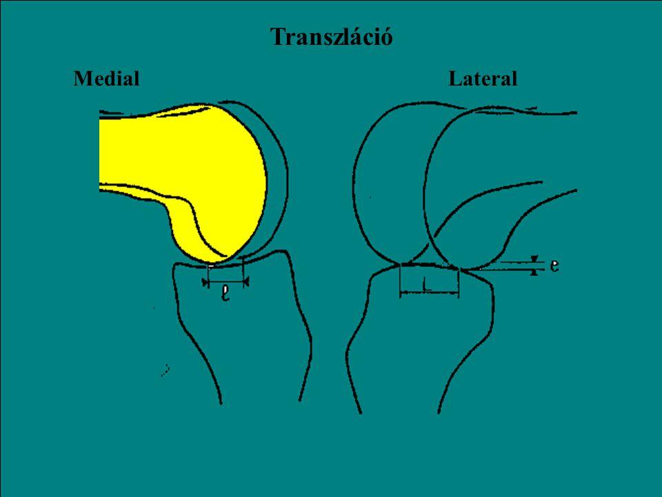 Transzláció Medial Lateral