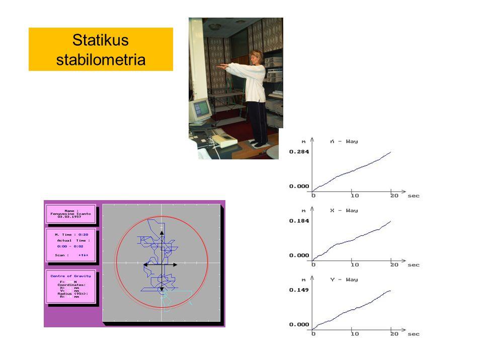Statikus stabilometria