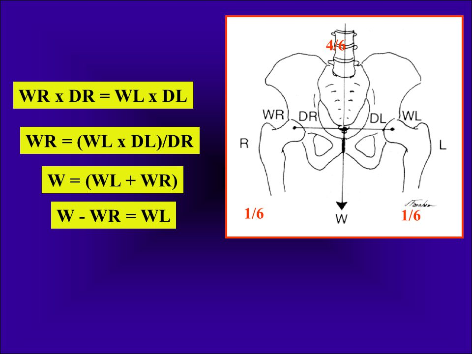 WR x DR = WL x DL WR = (WL x DL)/DR W = (WL + WR) W - WR = WL
