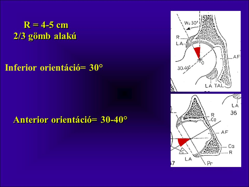 Inferior orientáció= 30° Anterior orientáció= 30-40°