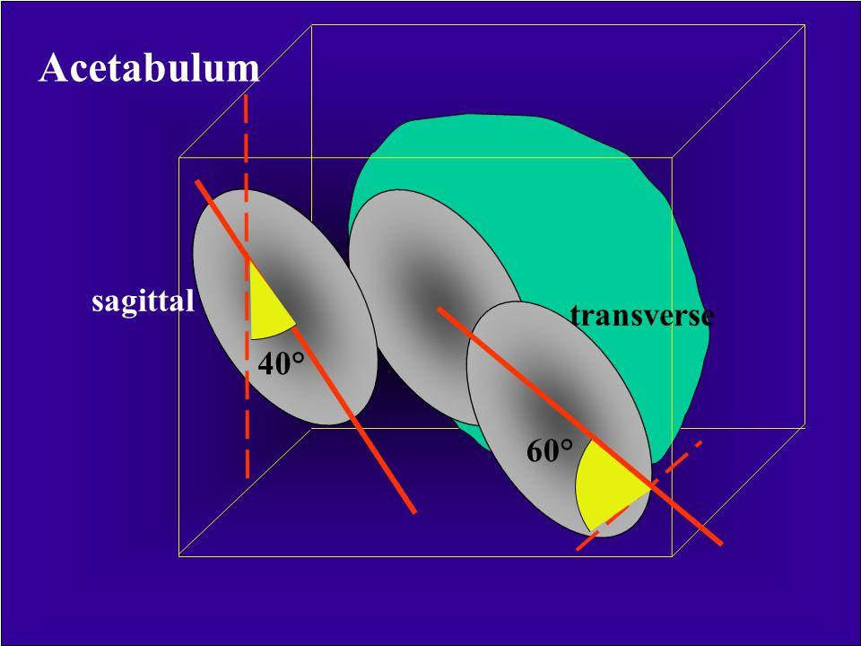Acetabulum sagittal transverse 40° 60°