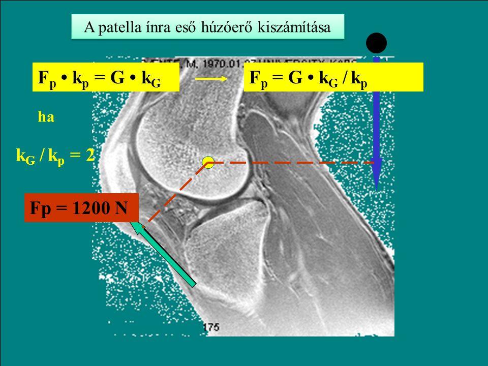 A patella ínra eső húzóerő kiszámítása
