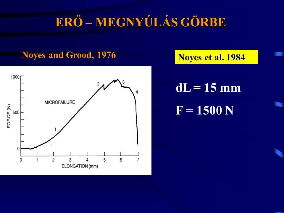 ERŐ – MEGNYÚLÁS GÖRBE dL = 15 mm F = 1500 N Noyes and Grood, 1976