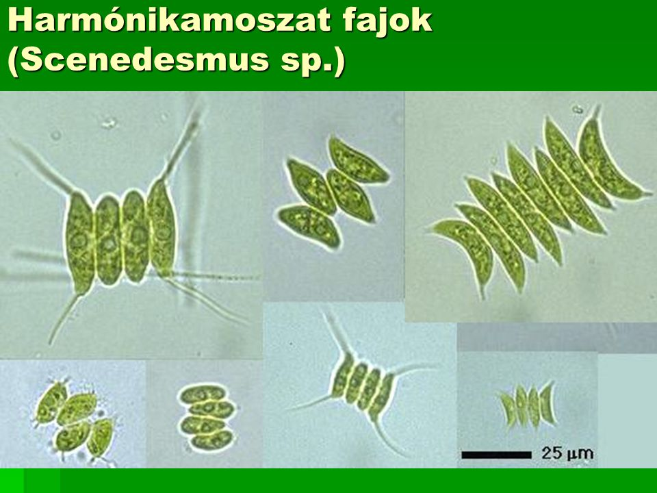 Harmónikamoszat fajok (Scenedesmus sp.)
