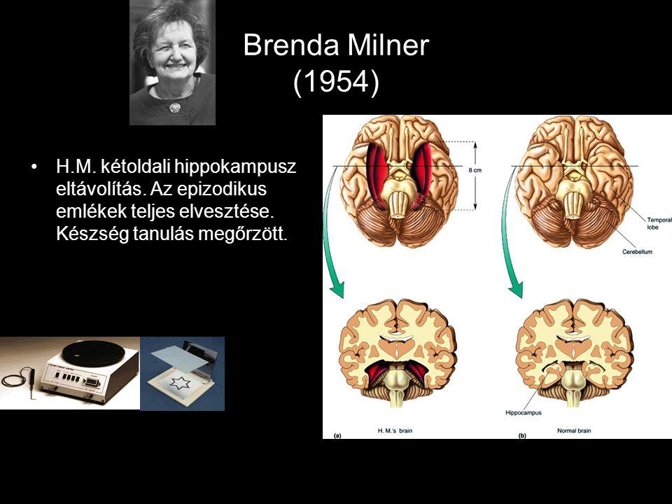 Brenda Milner (1954) H.M. kétoldali hippokampusz eltávolítás.