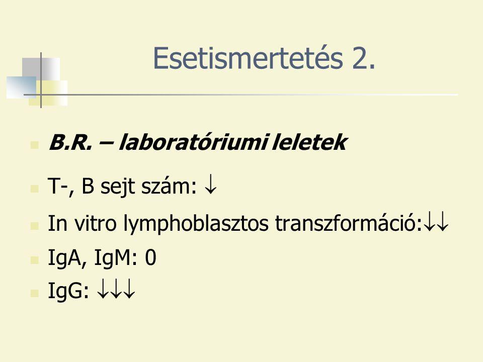 Esetismertetés 2. B.R. – laboratóriumi leletek T-, B sejt szám: 