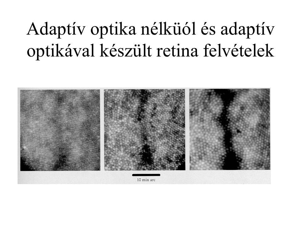 Adaptív optika nélküól és adaptív optikával készült retina felvételek