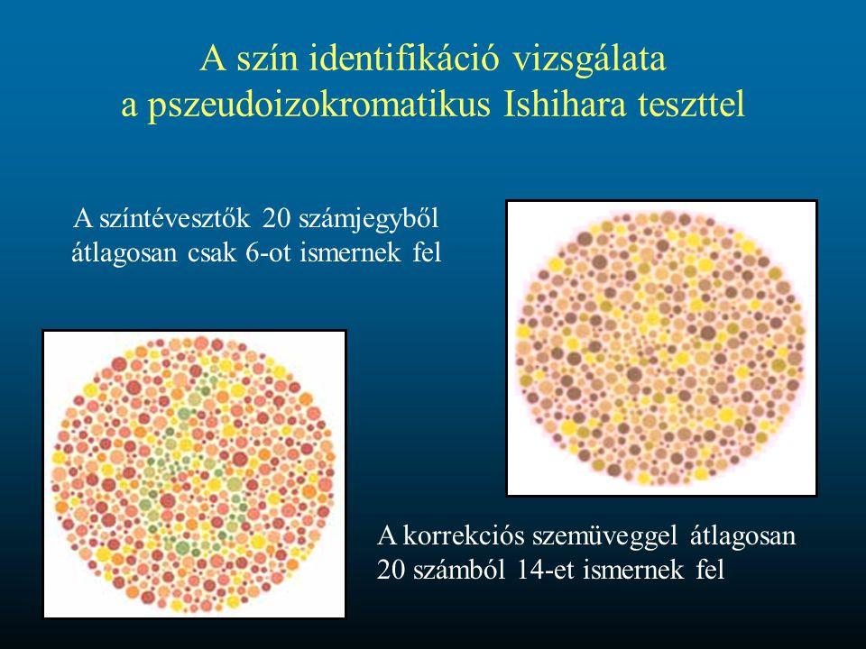 A szín identifikáció vizsgálata a pszeudoizokromatikus Ishihara teszttel