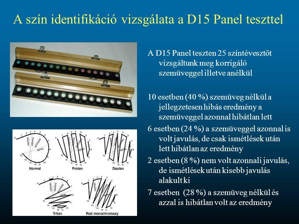 A szín identifikáció vizsgálata a D15 Panel teszttel