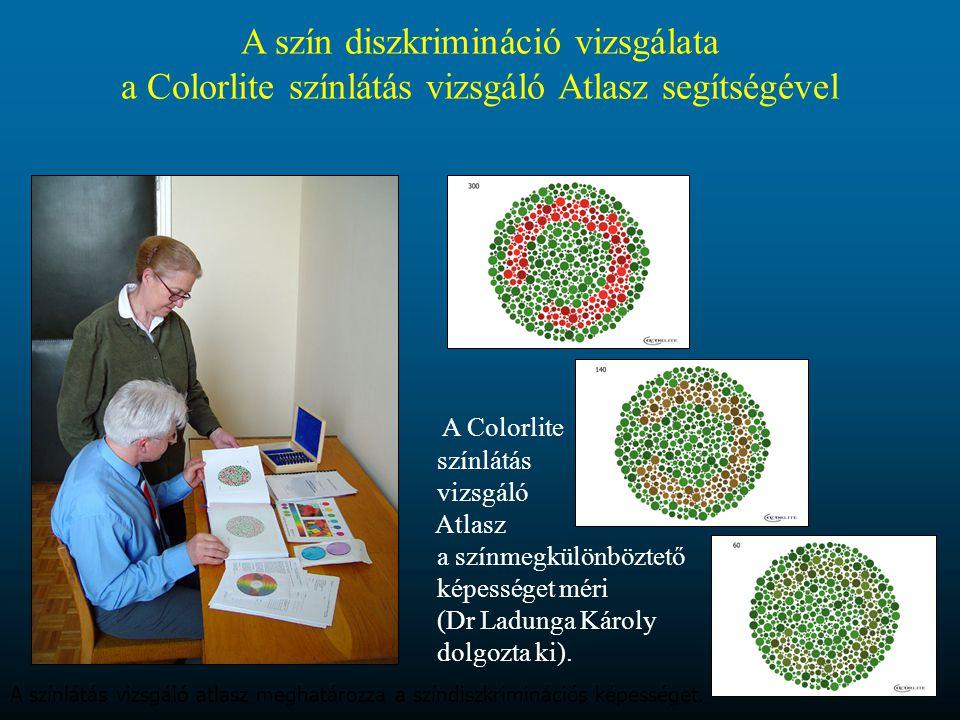 A szín diszkrimináció vizsgálata