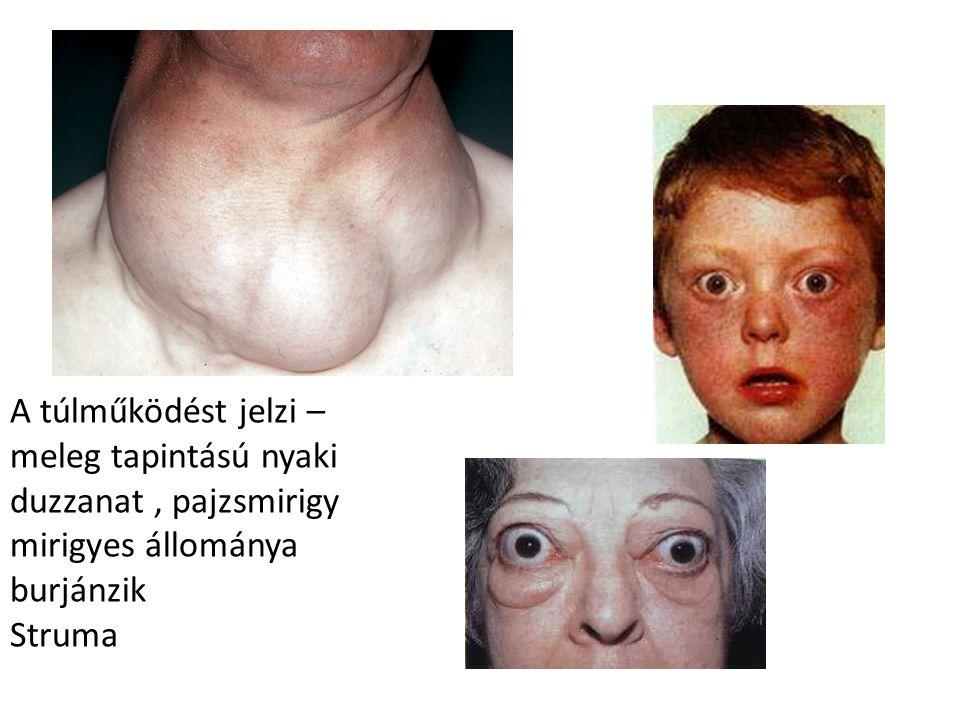 A túlműködést jelzi – meleg tapintású nyaki duzzanat , pajzsmirigy mirigyes állománya burjánzik Struma